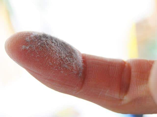 dust mite allergies